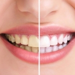ยาสีฟัน + น้ำยาบ้วนปาก