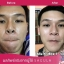 BS4 SAGULA Miracle Facial Treatment Essence ขนาดใหญ่กว่าเดิม รุ่นใหม่ Sakura & Lavenda 30ml.(2 ขวด) thumbnail 4